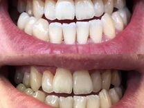 Работающий кабинет отбеливания зубов